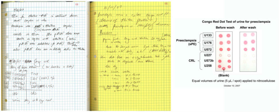 Image: Dr. Buhimschi's notebook (at left) describing the testing method she invented to detect preeclampsia (at right).